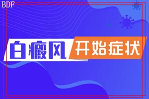东莞莞城白癜风复发的原因是什么?